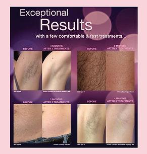 Skin Wellness MD Laser Hair