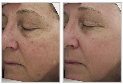 Halo Hybrid Fractional Laser Before and After