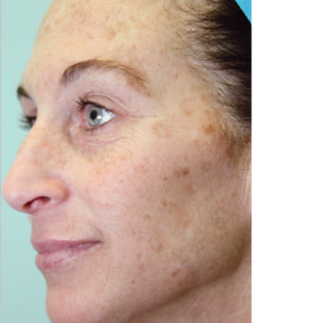 Before BBL Treatment of Face