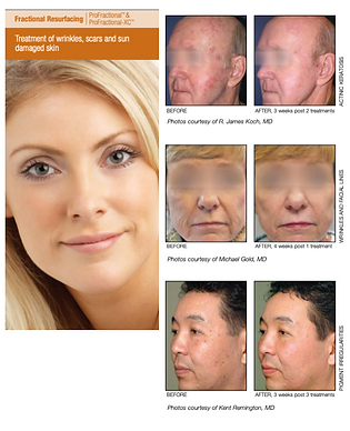 Profractional Fractional Laser Resurfacing
