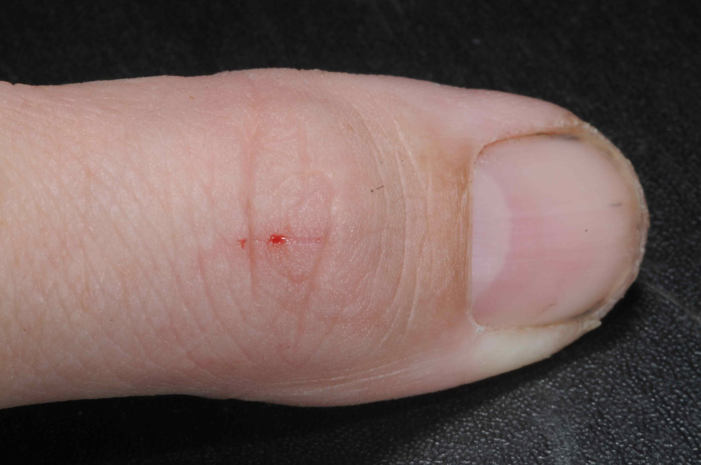 snake bite on the thumb