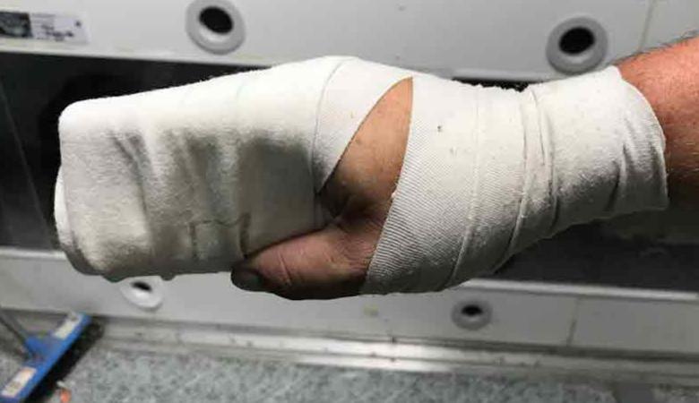 Setopress bandage on hand after snake bite