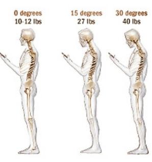 Forward head posture text neck