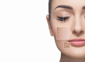 Skin Care LAguna Hills CA.jpeg