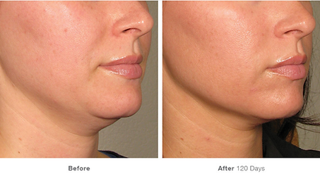 Ultherapy Anaheim CA.png