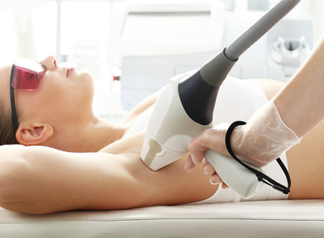 What to Know Before Laser Hair Removal