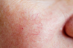Rosacea+Dermatology.jpg