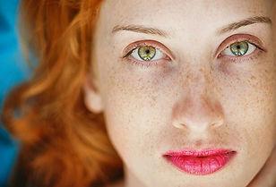freckles-1.jpg