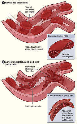 Sickle_cell_01.jpg