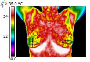Thermography-Breast-I3C-Before.jpg