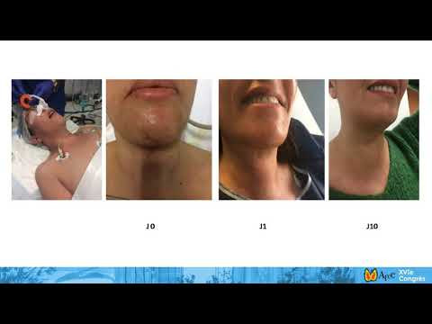 No Thyroid Scar and excellent cosmetic result at Day1