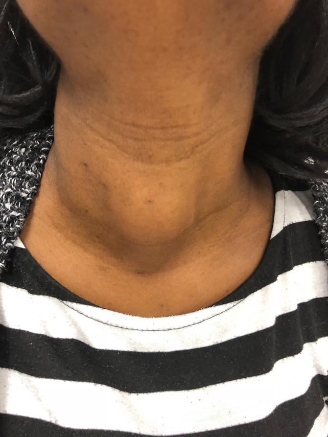 Volumineux Nodule Thyroidien, Chirurgie Endo Buccale Sans Cicatrice Cervicale