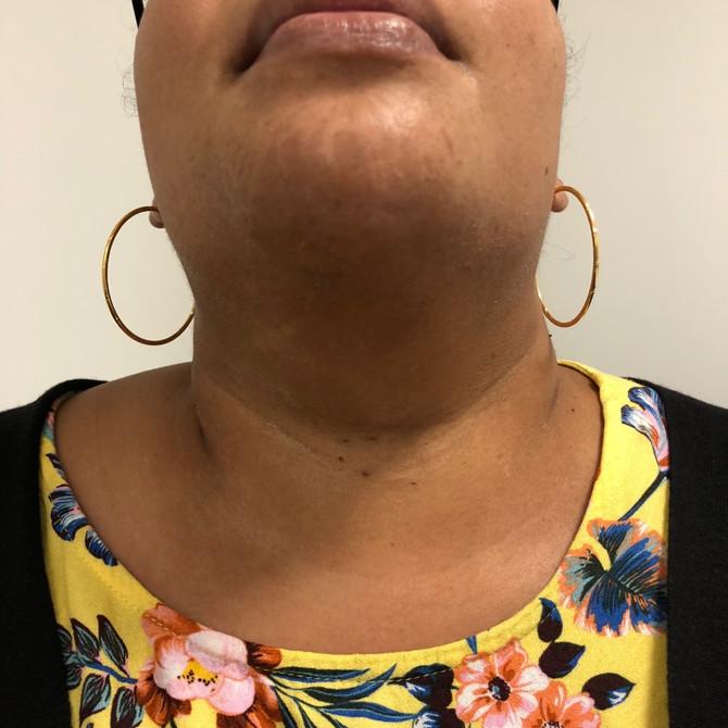 Chirurgie de la Thyroïde sans Cicatrice Cervicale
