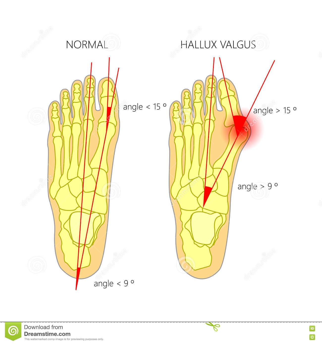 normal-foot-valgus-deviation-first-toe-i