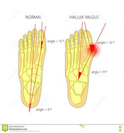 normal-foot-valgus-deviation-first-toe-i