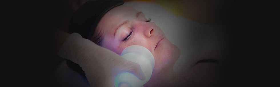Cryoskin Face Treatment