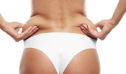 body contouring services brisbane - cellulite reduction