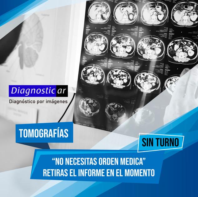 Publicacion tomografias.jpg