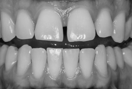 Teeth Related Aesthetic Concerns