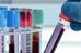 Importância do Hemograma para o Diagnóstico