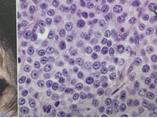 Tumor venéreo transmissível