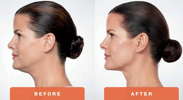 Kybella-Treatment-Before-and-After-Photo
