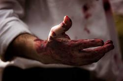 Albert bloody hands