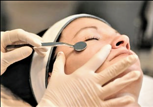 Holistic approach toskin resurfacing-Dermafile treatment in Annapolis