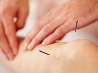 What is Contemporary Medical Acupuncture?