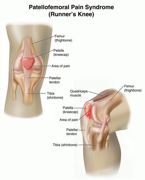 patellofemoral pain.png