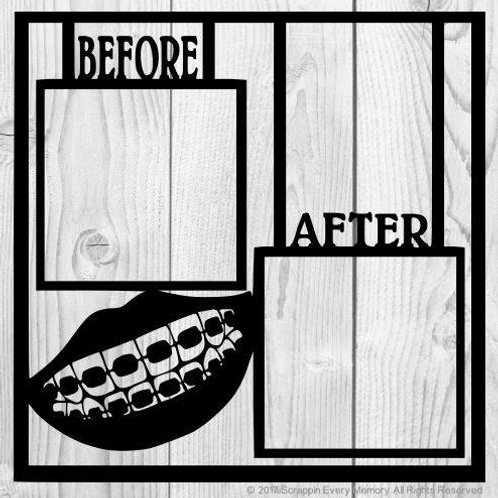 Braces Before After Scrapbook Overlay