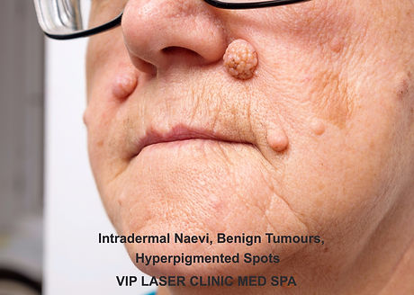 Intradermal nevus, benign tumor_edited.j