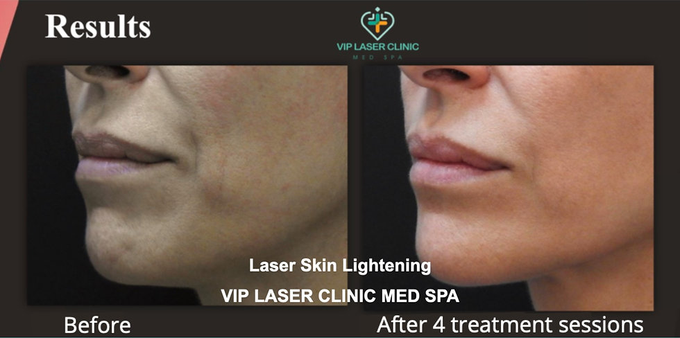 Laser%20Skin%20Lightening%20-%20Clear%20