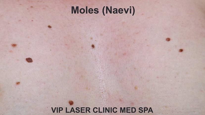 Moles - Naevi_edited.jpg