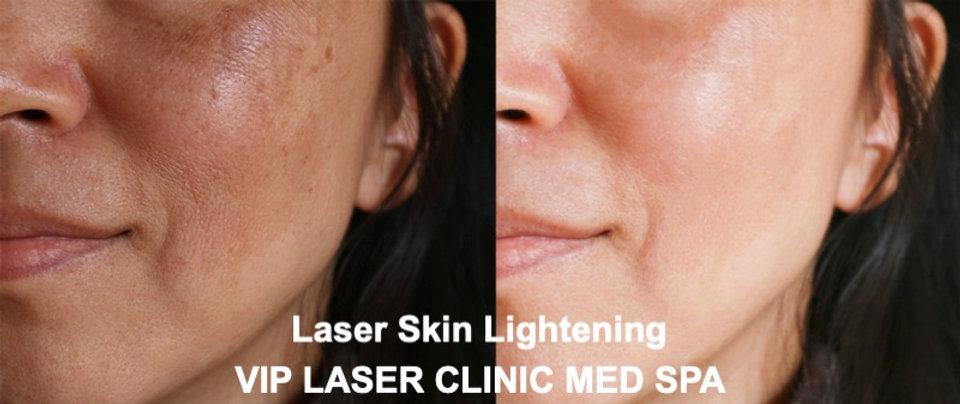 Facial%20Laser%20Skin%20Lightening%20-%2