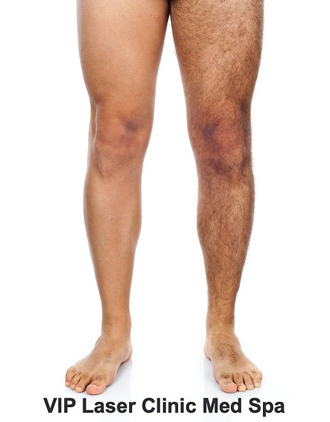 Laser Hair Removal On Male Leg_edited.jp