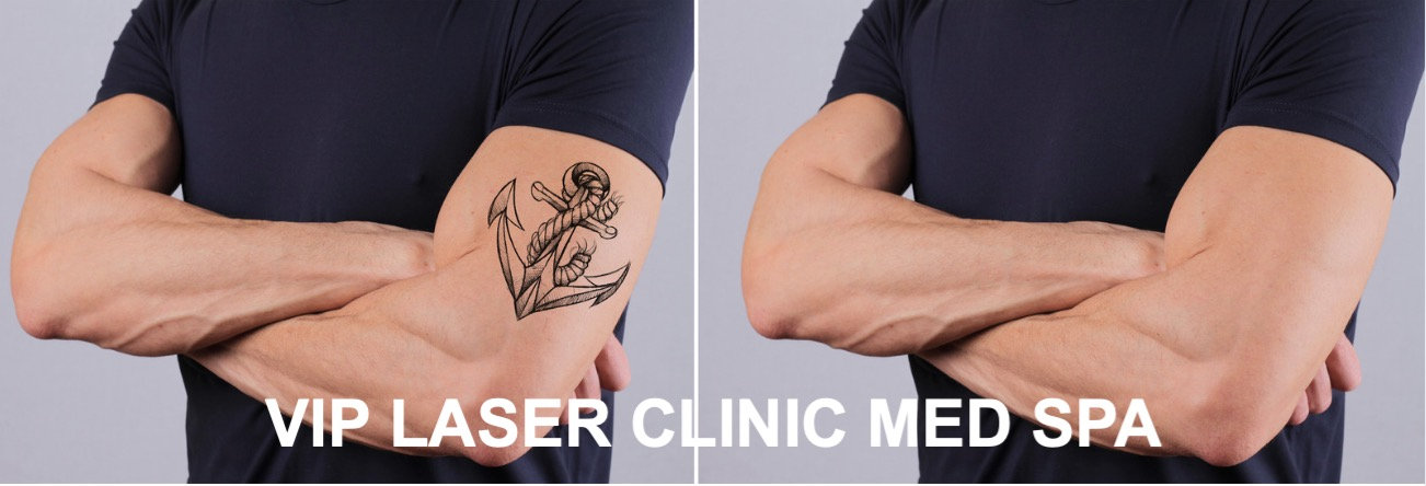 Laser Tattoo Removal - before_after - 02