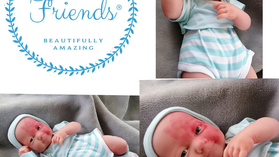 Baby Alex with protwine stain birthmark