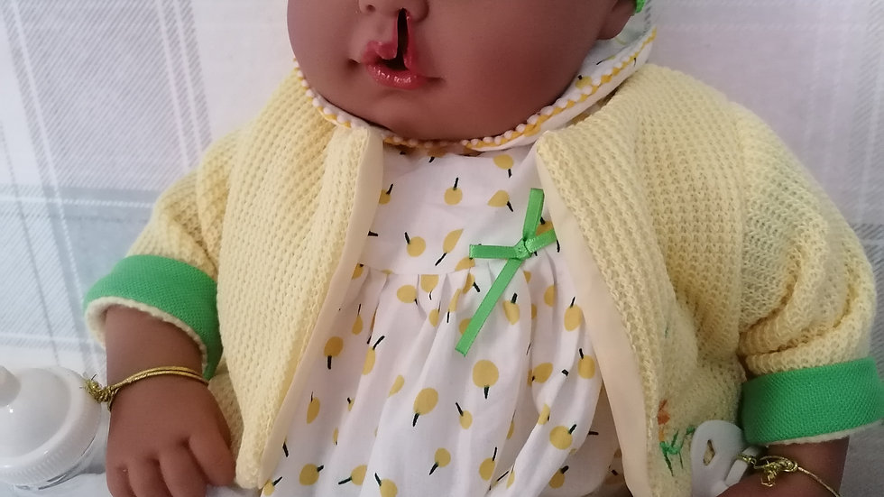 Cleft lip and feeding tube girl doll yellow