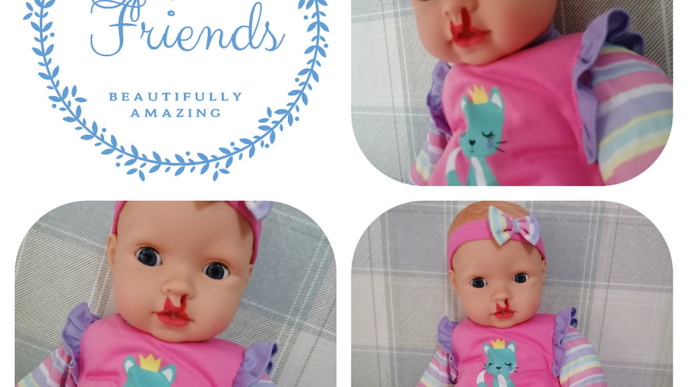 Incomplete and complete cleft lip girl doll