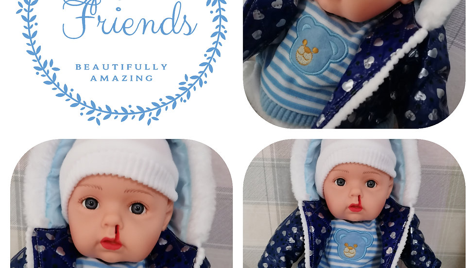 Cleft lip left side blue clothes talking doll
