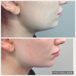 Jawline & Chin Dermal Fillers