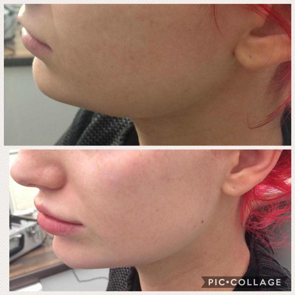 Jawline and Chin Dermal Fillers