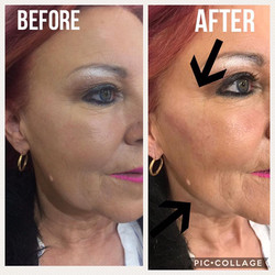 Cheek Dermal Filler