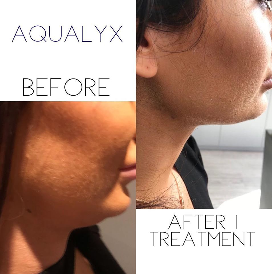 Chin Treatment