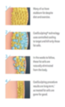 How CoolSculpting Works - Sound Women's Health & Aesthetics