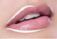 Fuller Lips - Juvederm Ultra