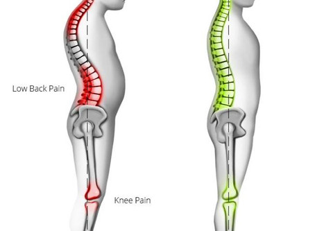 Controversial Post... Let's Talk... Kissing Spine