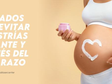 Cuidados para evita las estrías durante y después del embarazo