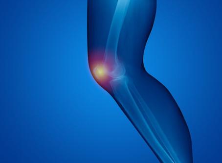 متلازمة الألم ما بين الصابونة والفخذ ''Patellofemoral Syndrome''